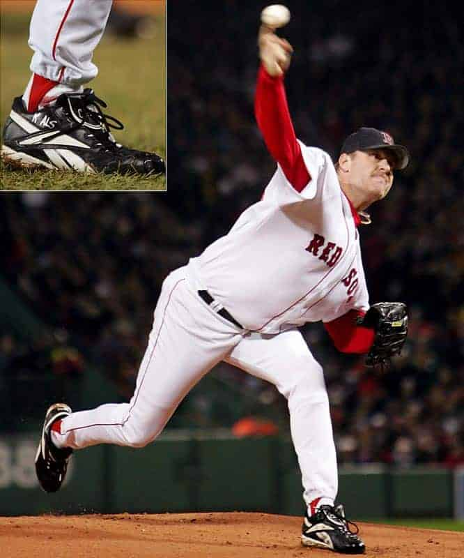 Curt Schilling showed leadership by example when he pitched hurt.